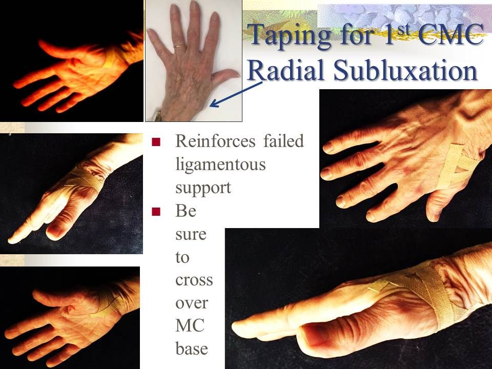 Taping for thumb subluxation (dislocation) or instability ...