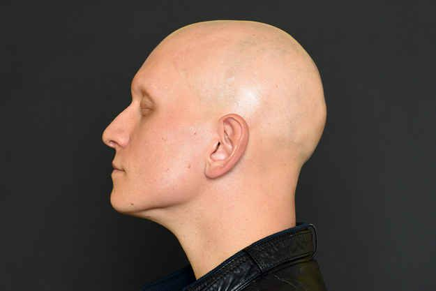 Quot Gotham S Quot Anthony Carrigan Talks Acting Alopecia And