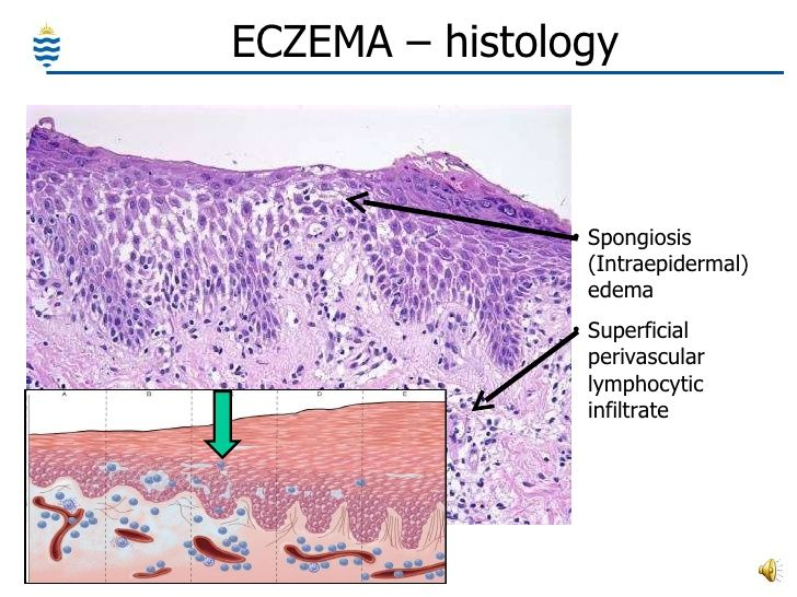 inverse psoriasis histology)