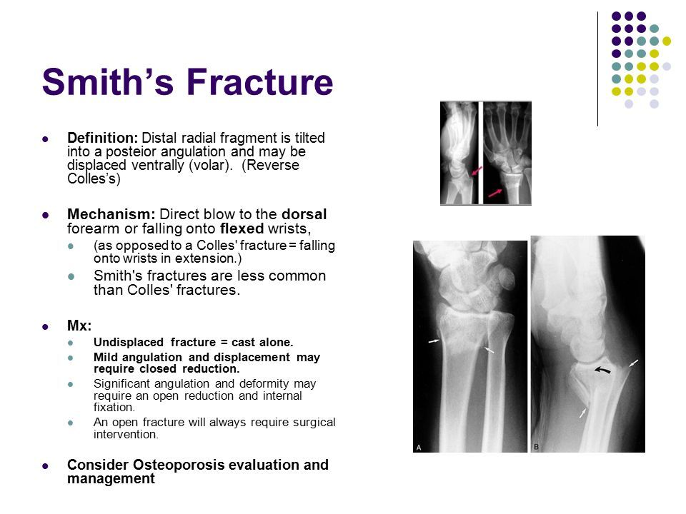 Needed Two Surgeries Due To Smith Fracture Tendon In