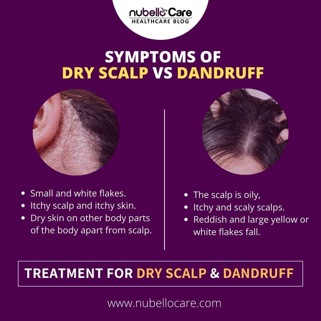 Itchy scalp and white flakes can be dandruff or a dry ...
