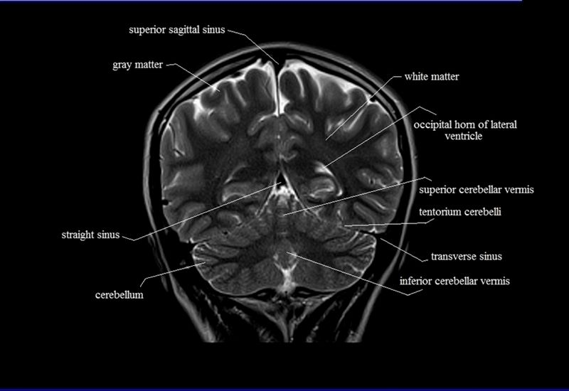 Dorable Sectional Anatomy Of Brain Coleccin Anatoma De Las