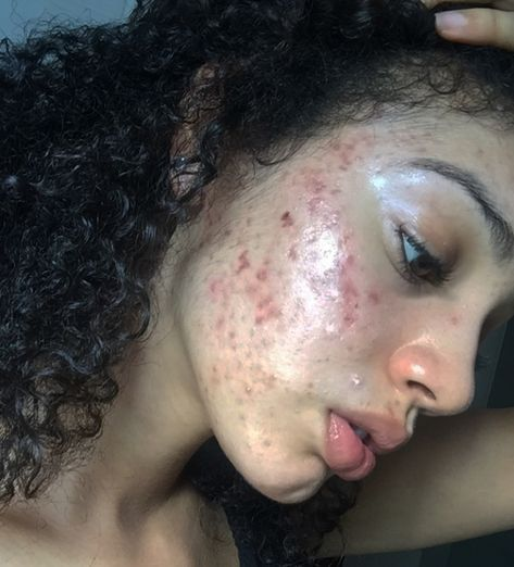 This Viral All-Natural Acne Cure Completely Cleared This Model's Skin & The Results Are Incredible