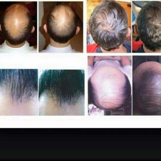 Men S Results Our Nutriol Shampoo Helps With Hair Loss Due To