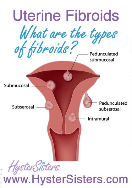 What Are the Different Types of Uterine Fibroids?   Uterine Fibroids HysterSisters Article