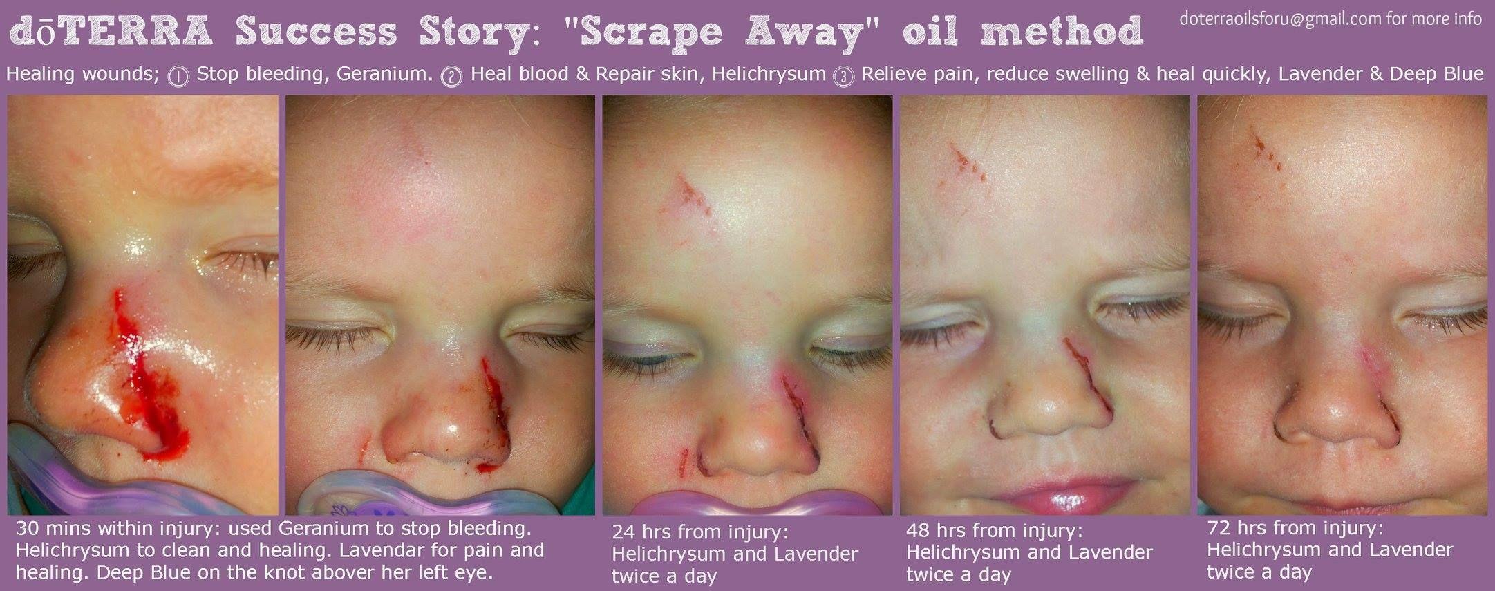 Scrape Away