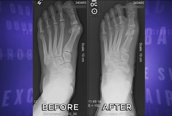 Minimally Invasive Bunion Surgery:  Podiatrist Dr. Ali Khosroabadi performs a groundbreaking bunion removal surgery with rapid recovery time and minimal scarring.