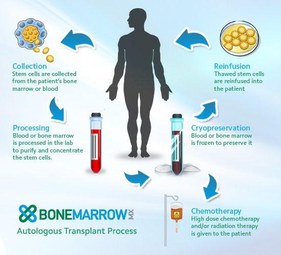 How To Treat Multiple Myeloma Naturally