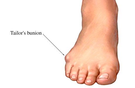 32+ Start of a bunion trends