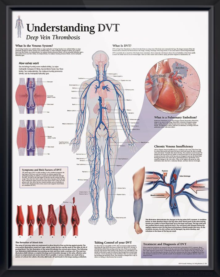 understanding dvt anatomy poster illustrates formation of a blood clot  leading to pulmonary embolism  cardiovascular chart for doctors and nurses