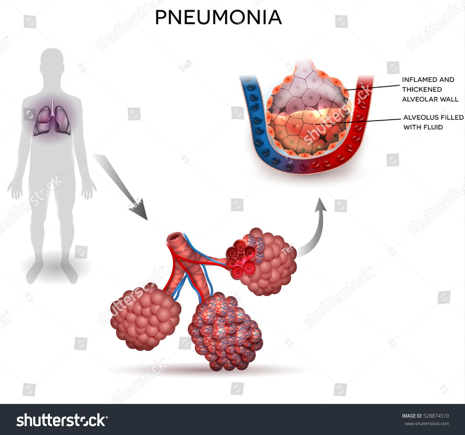 Pin On Respiratory System