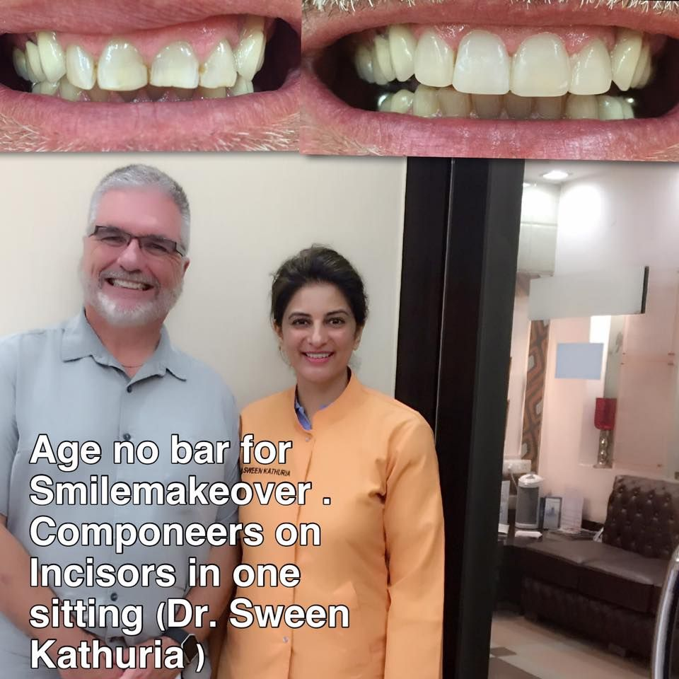 Pin by Dr. Kathuria's Dentistry on Case of the Day