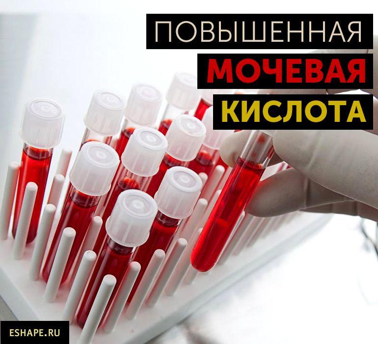 мочевая кислота в крови повышена причины симптомы