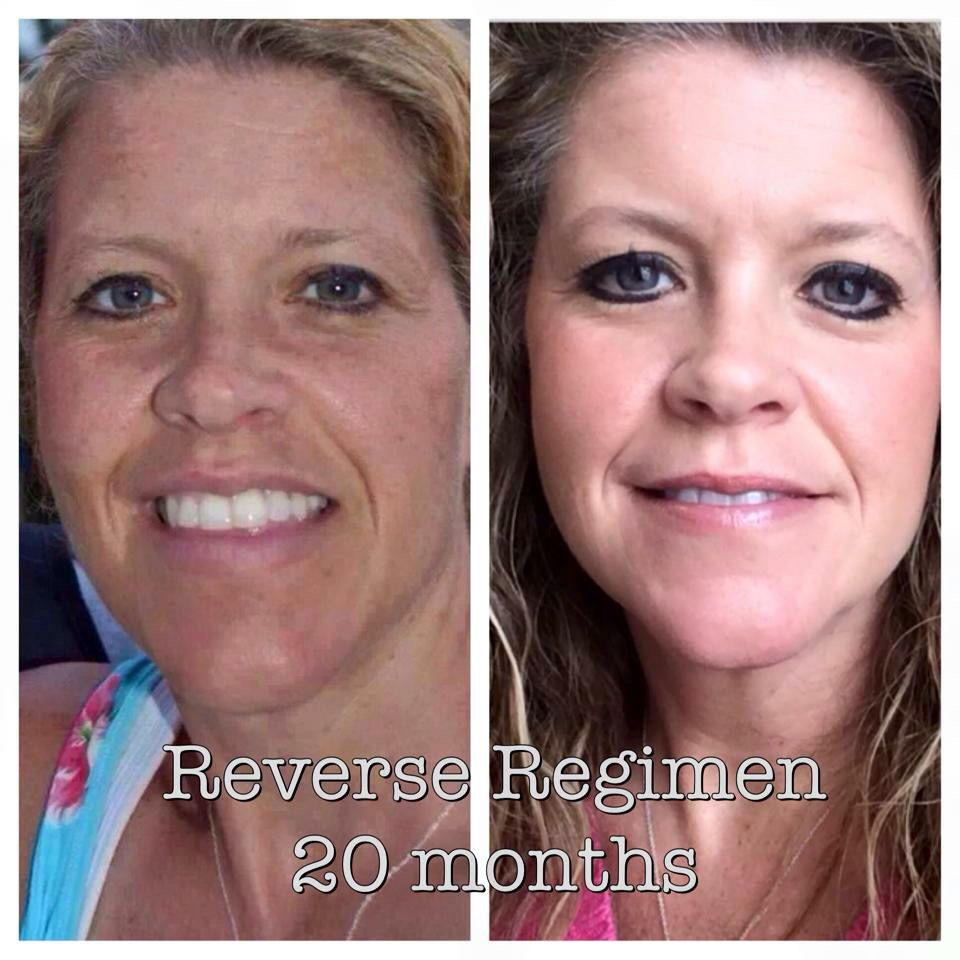 JoDee Watkins is the embodiment of the R+F motto, Changing skin....Changing Lives. You can see how the REVERSE regimen got rid of her sun damage!   As a consultant she has helped others do the same and achieved great success!!  She has earned her FREE Lexus, retired her hubby and herself!! Now they are free to raise their kids and keep helping people!  What would your life look like if you had the time and money to enjoy it?  I want you on my team!  Let's chat barbaramccarty.myrandf.biz
