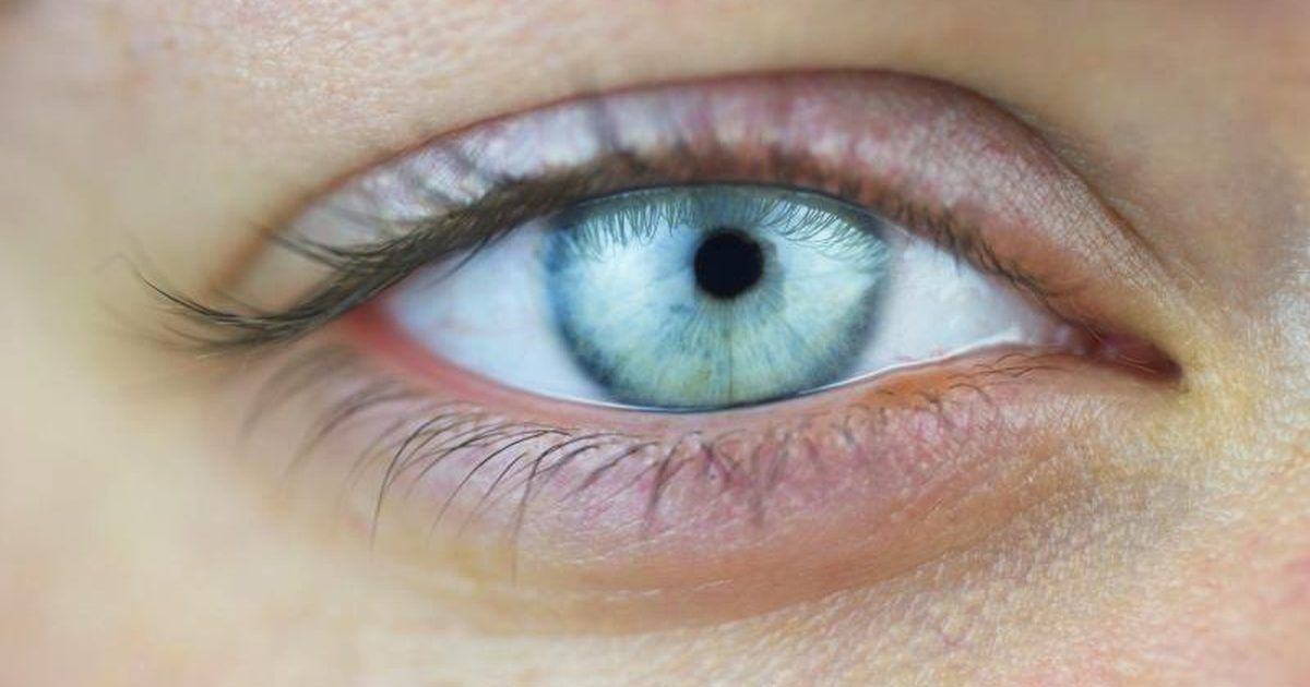 4 Exercises to Get Rid of Under-Eye Hollows and Tips to ...