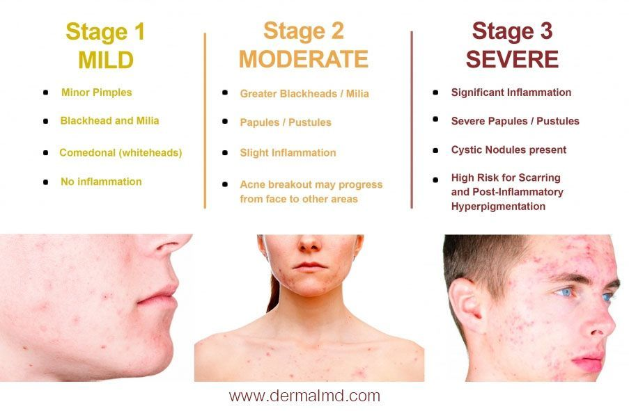 The Different Stages Which Will Tell You The Condition Of Your Acne Disease If You Are Having Minor Pimples With Acne Treatment Acne Disease Cystic Acne Cure