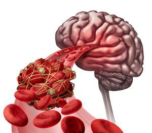 Brain Awareness Week: Blood clots in brain, brain fog, ADHD, and tips for better brain h...
