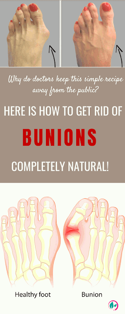 40++ Why are bunions bad trends