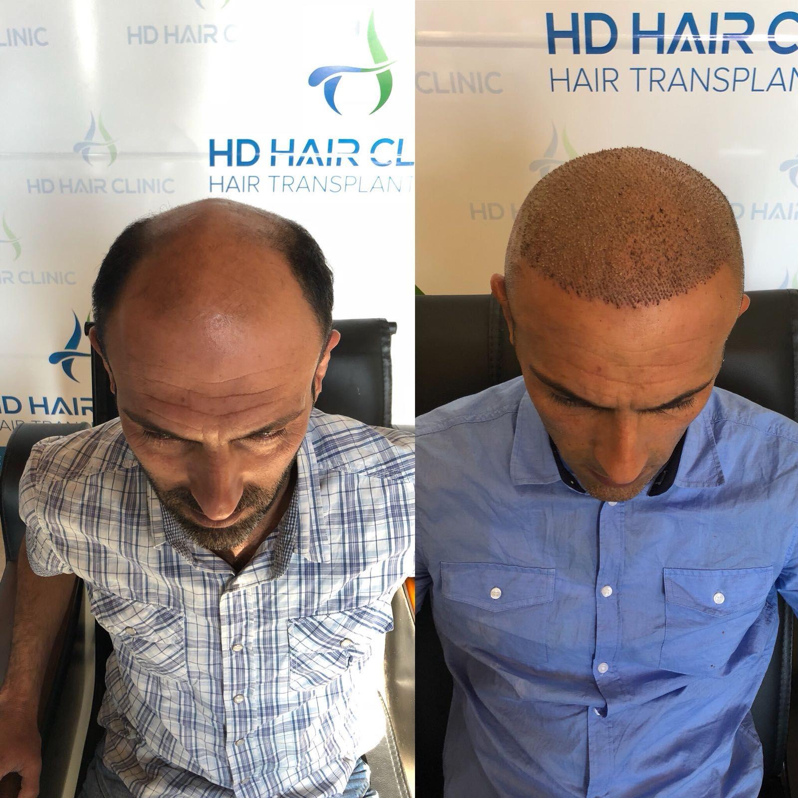 Hd Hair Clinic Adli Kullanicinin Sac Ekimi Panosundaki Pin Sac