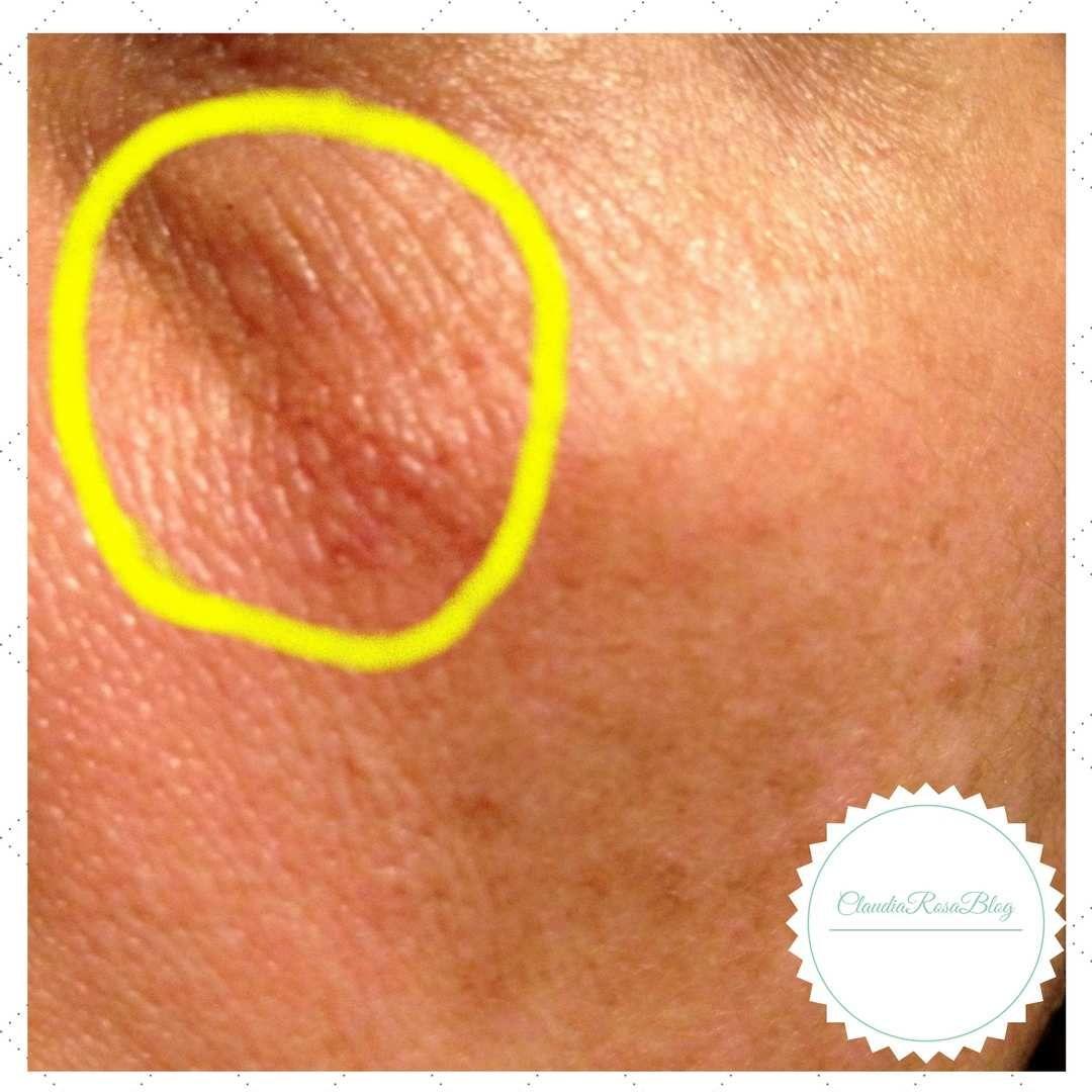 Reação adversa da pele causada pelo Vitanol-A