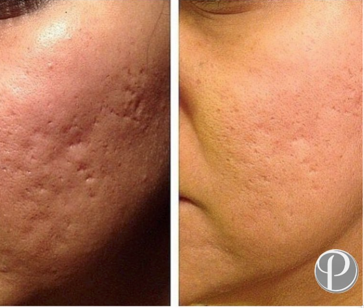 DermaPen (Microneedling) before and after by Premier Laser