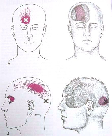 Occipitalis & Frontalis Trigger Point Diagram | Triggers Points ...