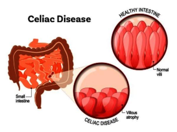 ماهو مرض السيلياك و أعراضه وأسبابه وكيفية علاجة مجلة رجيم Celiac Disease What Is Celiac Disease Disease