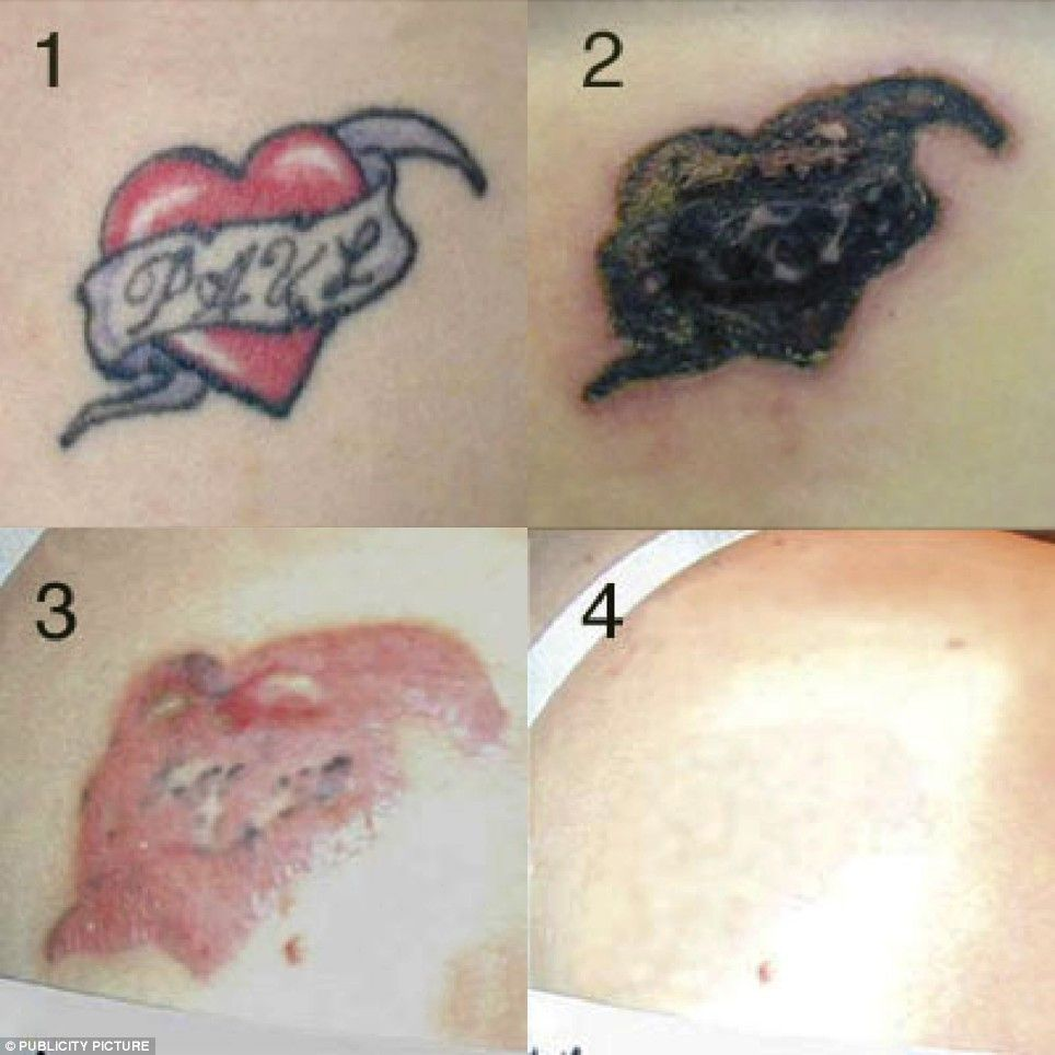 pictures of At Home Tattoo Removal Reviews | Tattoo World ...
