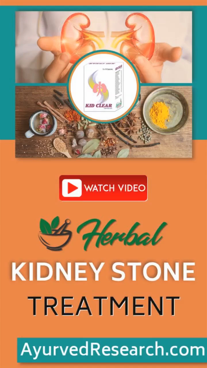 Best Natural Remedies for Kidney Stone, Pass Kidne