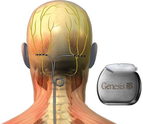 Occipital nerve stimulation for migraine. I had this put in cause I ...
