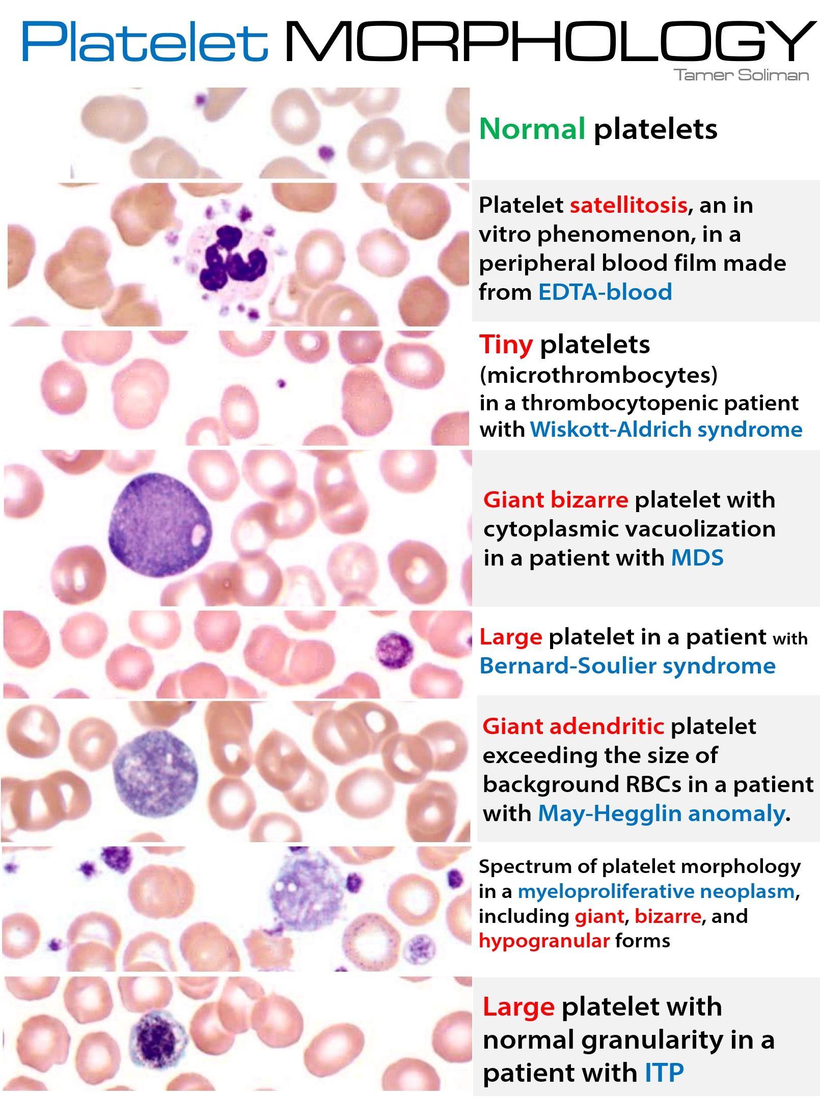 Normal v. Abnormal variants. Visuals. >>> Platelet Morphology