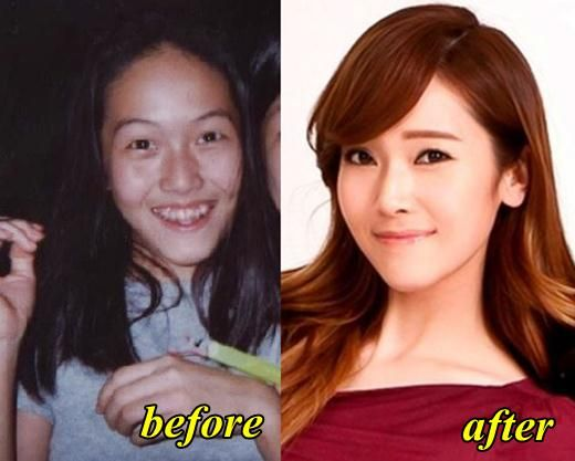 Https Www Google Dz Search Q Snsd Plastic Surgery Before And