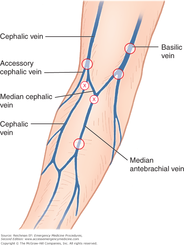 Accessory Cephalic Vein Images Human Internal Organs Diagram