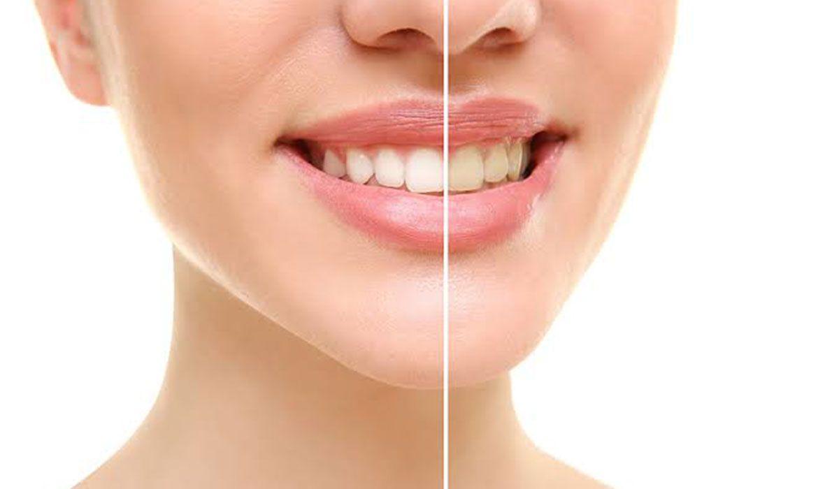 طريقة تبييض الأسنان Nostril Hoop Ring Hoop Ring Nose Ring
