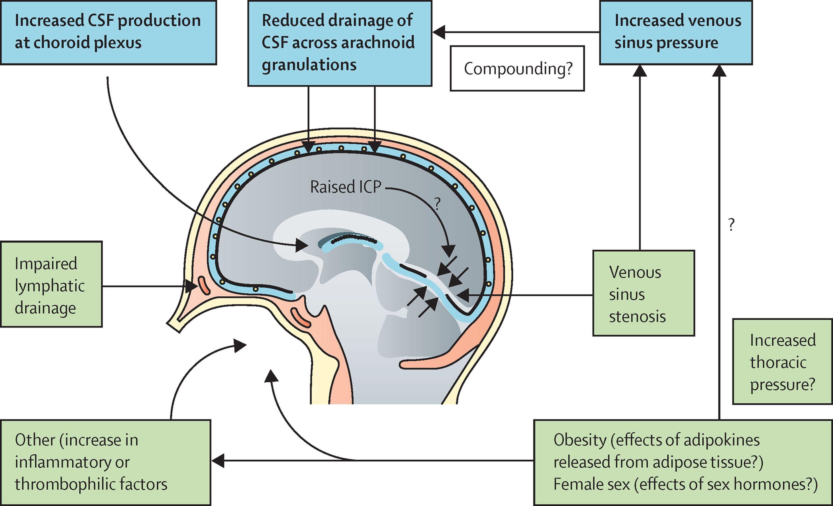 hight resolution of understanding idiopathic intracranial hypertension mechanisms
