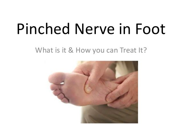 How To Get Rid Of Pinched Nerve In Foot Pinched Nerve Pinched Nerve Relief Nerve Relief