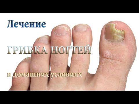 100 избавление от грибка ногтей - О грибке ногтей