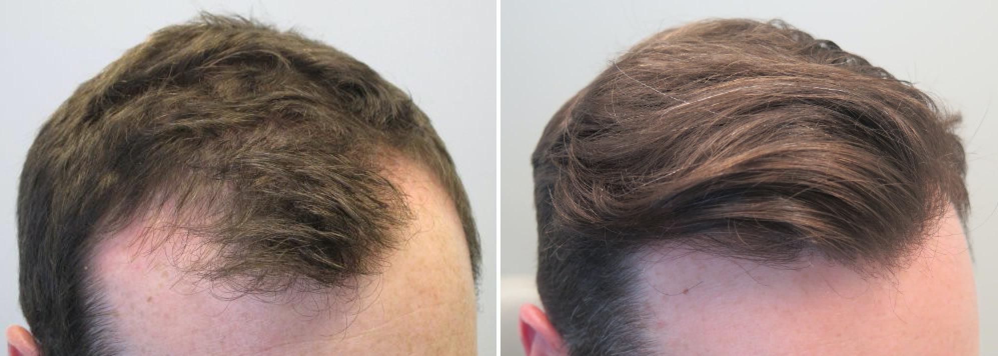 Kết quả hình ảnh cho hói đầu spa