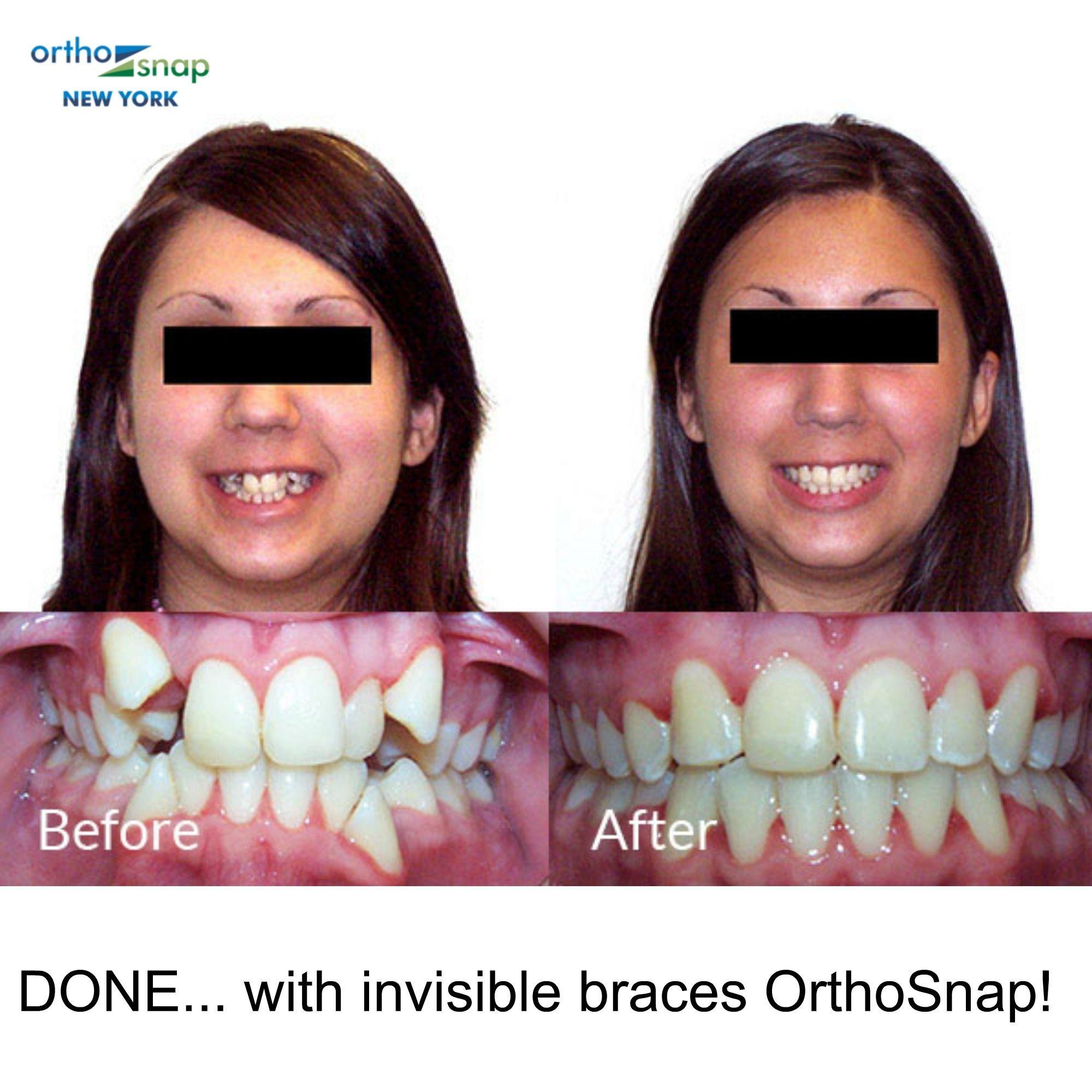 Clear braces image by berthelga pinehogger on braces