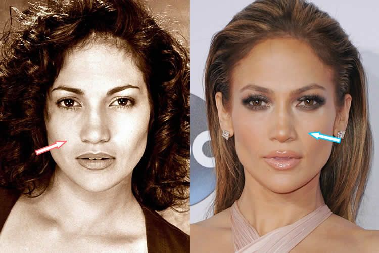 Jennifer Lopez Before And After Yahoo Image Search Results
