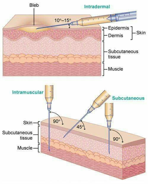 Attack angle for intramuscular, subcutaneous intradermal