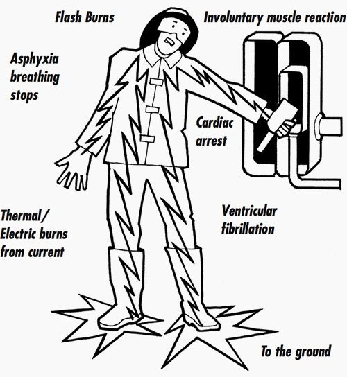 effects of electric shock effects on the body