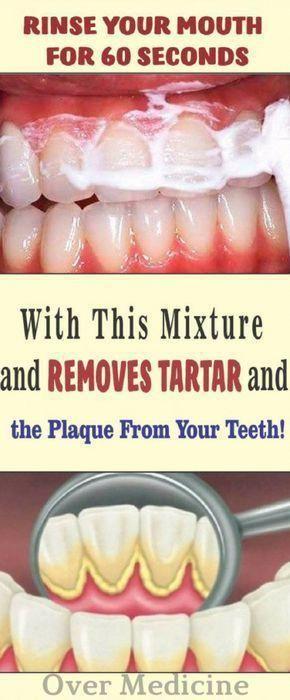 Spülen Sie Ihren Mund 60 Sekunden lang mit dieser Mischung aus und entfernen Sie Zahnstein und Plaque von Ihren Zähnen   – bad breath remedies mouths