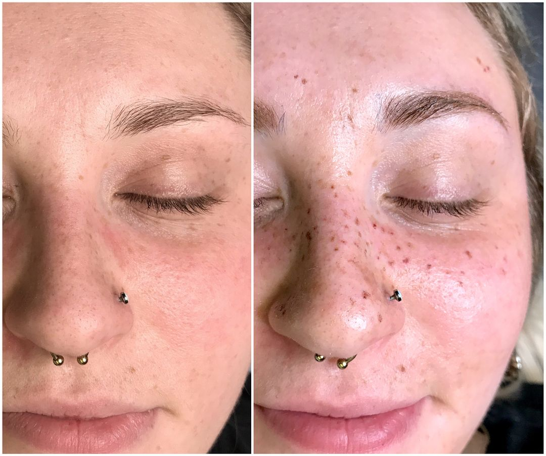 c81747548b554 'AstroFrecks' Are Semi-Permanent Constellation Freckles and You're Gonna  Want Them