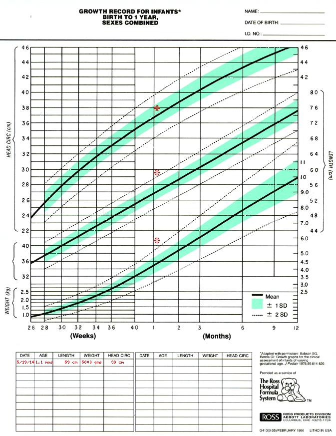 Medcalc interactive growth chart preemie pinterest growth charts