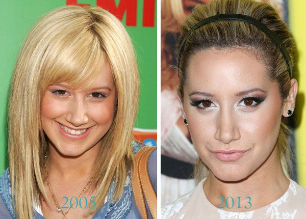 It S Completely Shallow And Wrong But Her New Nose Looked So Much Better Ashley Tisdale Nose Job Nose Job Celebrity Plastic Surgery