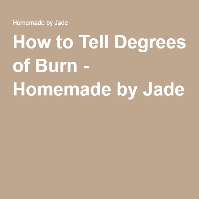 How to Tell Degrees of Burn - Homemade by Jade