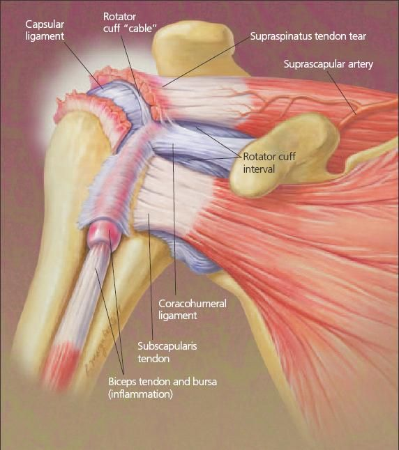 Taking A Closer Look At Rotator Cuff Disorders Page 2 Of