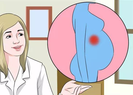 Detect Appendicitis