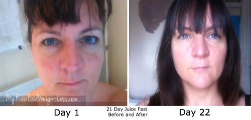 The Benefits Of A Juice Fast Clear Skin Weight Loss And Im Generally Glowing Heres What The Difference A 21 Day Juice Fast Made Me